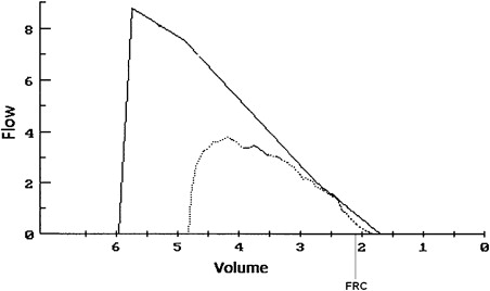 respiratory physiology and resting values exercising Human physiology respiration  & sternum to resting position  restores thoracic cavity to preinspiratory volume  control of respiration your respiratory rate.
